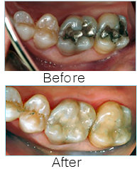 Tooth Colored Restorations